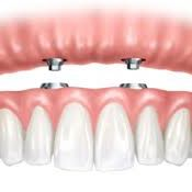 1 hour 30 minutes • Price varies An implant-supported prosthesis is a denture, which is both retained and supported by four or more dental implants. This means that the denture does not rest on the gums. Rather, it is fixed on implants, which are embedded in bone.